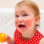Comment aider votre enfant à faire face à une allergie alimentaire