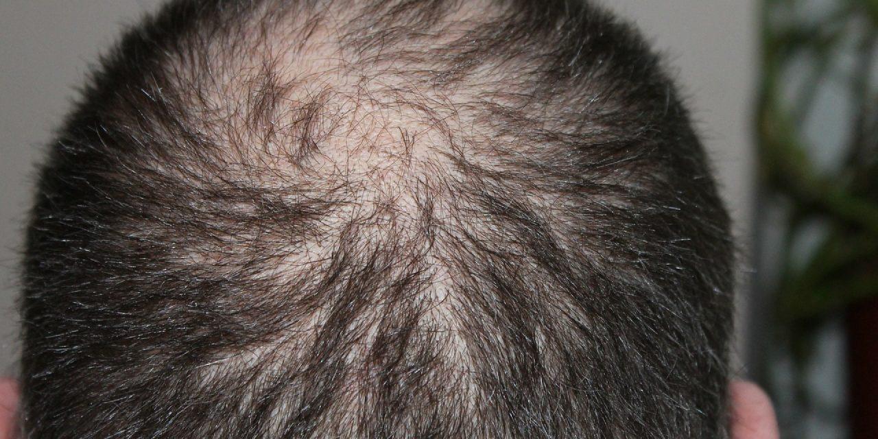 Comment éviter et traiter la perte de cheveux