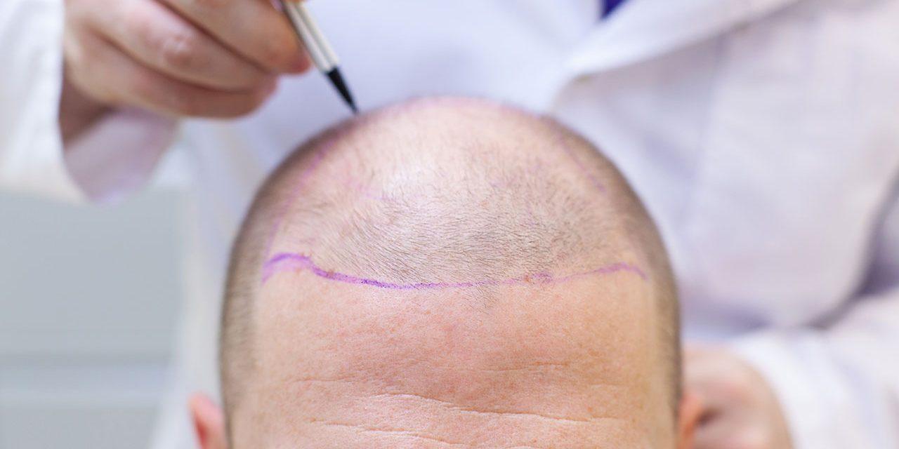 Comment réussir sa greffe de cheveux?